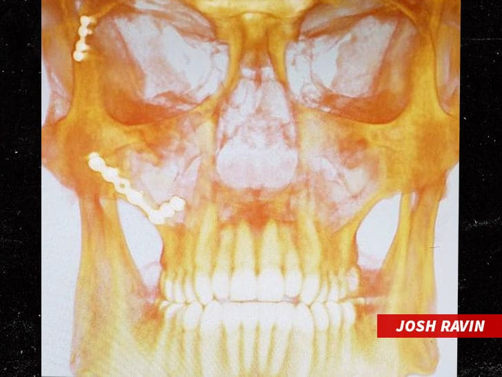MLB's Josh Ravin Shows X-Ray After Line Drive to Face, I'm Bionic Now!
